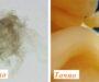 Лажне слике о развоју бебе на сајту клинике за абортус